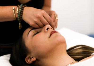 acupuncture---facial-rejuveation-(4)